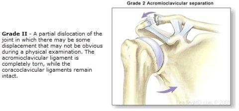 grade 2 A-C joint sprain